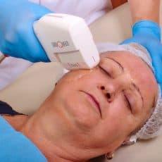 Bezinwazyjny, niechirurgiczny lifting twarzy i ciała SONOQUEEN zielona góra